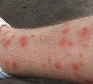 how to get rid of red bug bites